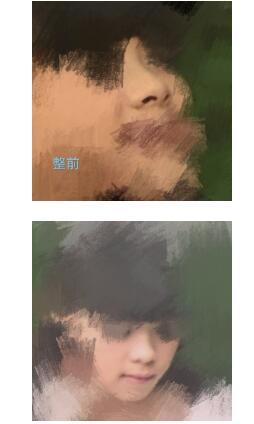 北京四美医院做鼻部综合术案例 医生技术口碑好
