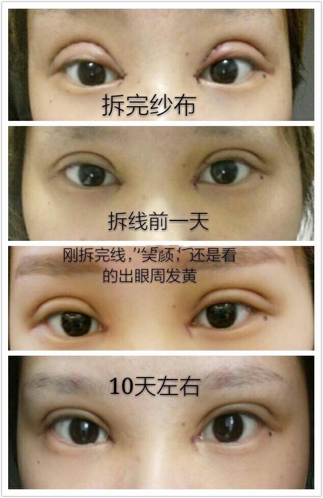 杭州格莱美整形陈笑医生做的全切双眼皮+去皮去脂+内眼角 美美的