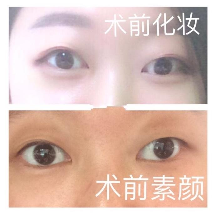 安徽医科大学第一附属医院李小静医生做的全切双眼皮价格是4000+