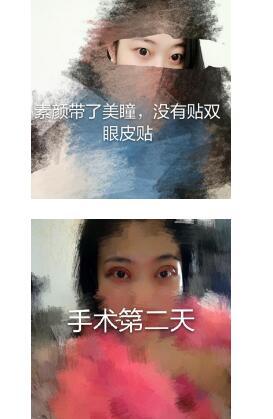 成都华西西藏成办分院做全切双眼皮+内眼角案例 郭详文医生技术好