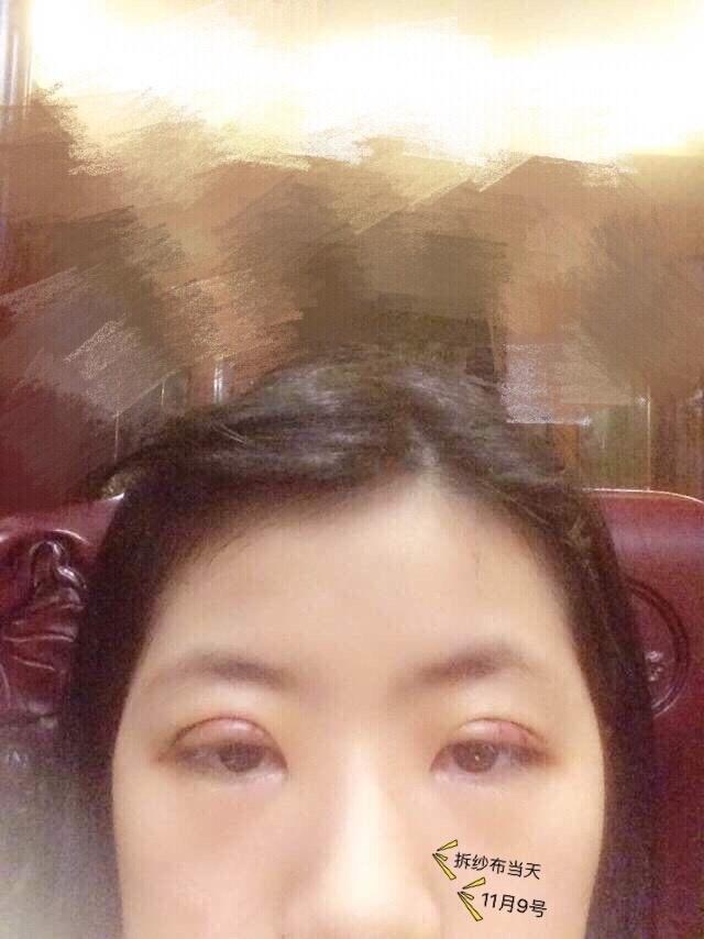 上海九院整形罗敏医生做的全切双眼皮案例 超喜欢术后的样子