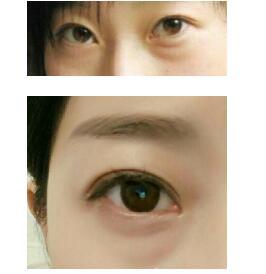 四川西婵医院做多点双眼皮+眶隔释放+内切眼袋案例 眼睛大了