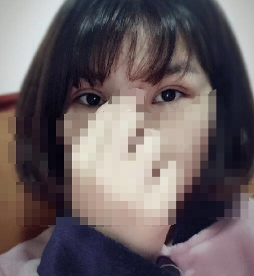 上海九院整形黄如林医生做的全切双眼皮+去皮去脂+内眼角发福利了