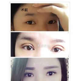 浙江台州广济整形做全切双眼皮+去皮+去脂案例 林峰医生技术口碑