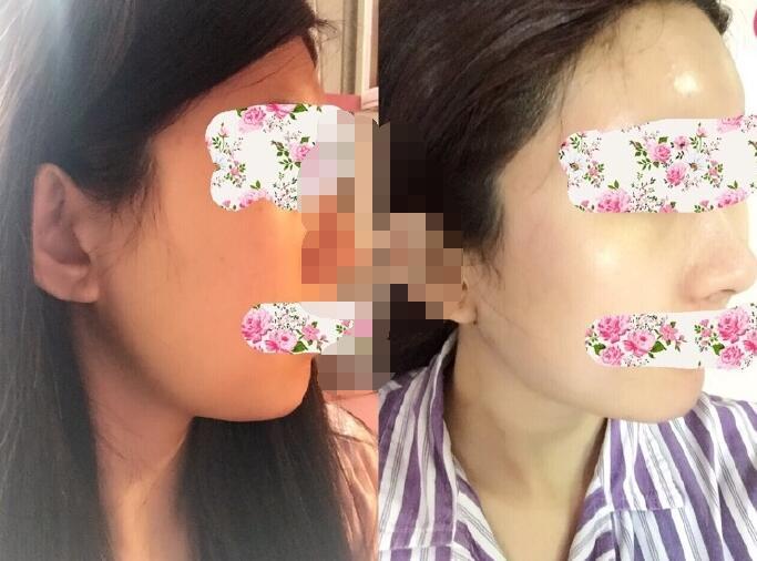 郑州米兰整形程书信医生做的额头填充+下颌缘吸脂 变化图来了