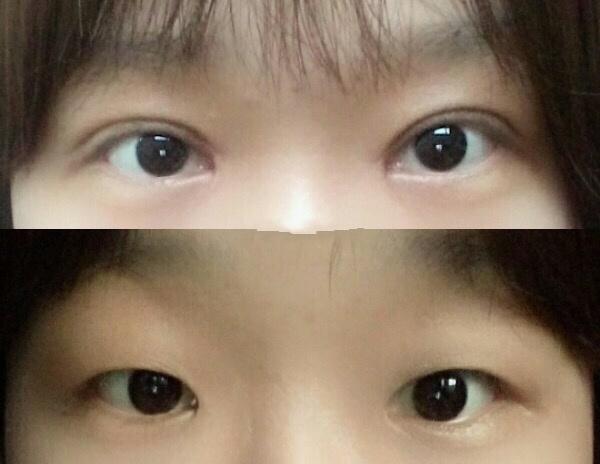 华中科技大学同济医院曹玮医生做的全切双眼皮+内眼角案例 花6200