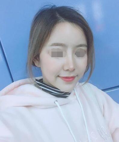 【整形大咖】郑州大学第五附属医院整形姜南教授的鼻部雕塑艺术