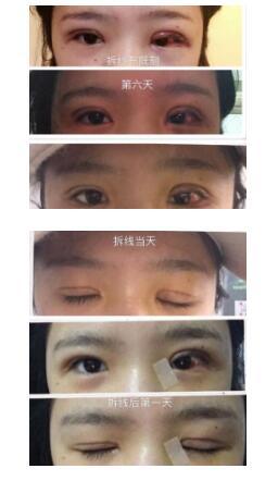 上海九院做全切双眼皮+内眼角案例 谢芸医生技术口碑好