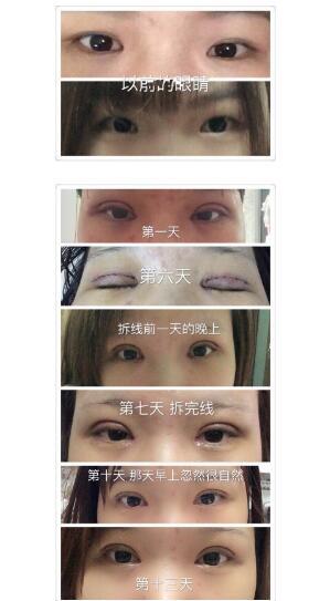 广州海峡医院分享吕方中医生的全切双眼皮+内眼角案例 眼睛变大了