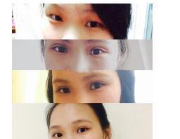 上海第九人民医院做全切双眼皮+内眼角案例 李茅医生技术口碑好