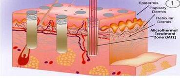 激光收縮毛孔費用是怎么算的