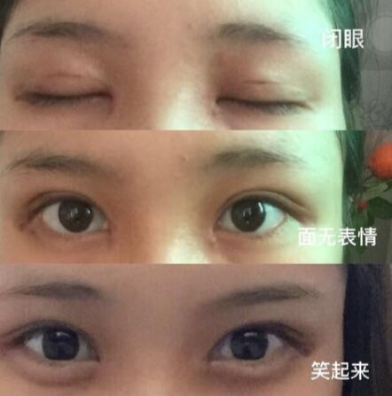 长沙申美整形张巍医生做的全切双眼皮+内眼角案例