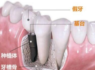 種植牙的種類有純金屬牙和金屬烤瓷牙