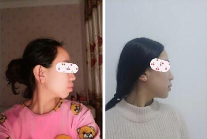 北京八大处整形尹宏宇医生做的硅胶假体垫下巴案例 花了5300多