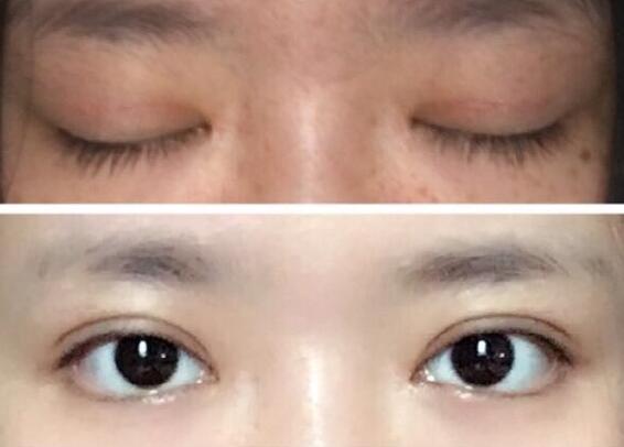 长沙协雅整形李主任做的全切双眼皮+内眼角案例 术后真的很美哦