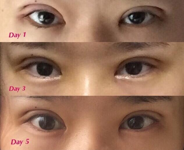 华中科技大学同济医院曹玮医生切双眼皮+去皮去脂案例 感觉还不错