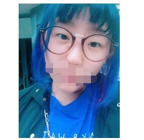 青岛刘大夫分享全切双眼皮+内眼角案例 眼睛真的变漂亮了