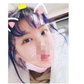 青岛刘大夫分享全切双眼皮+内眼角案例