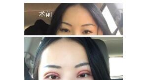 赣州韩美医院双眼皮修复案例 谢靓花医生技术口碑好