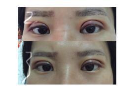 武汉同济医院分享王海平医生全切双眼皮案例 价格很优惠