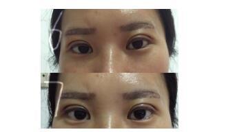 武汉同济医院分享王海平医生全切双眼皮案例