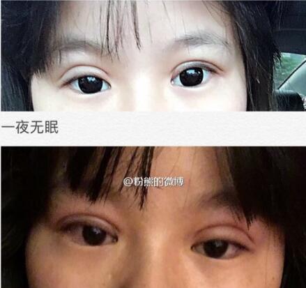 上海九院整形黄如林医生做的双眼皮修复案例 术后变好看很多了