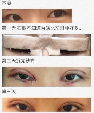 北京凯润婷医疗美容医院孙主任做的全切双眼皮、内眼角案例