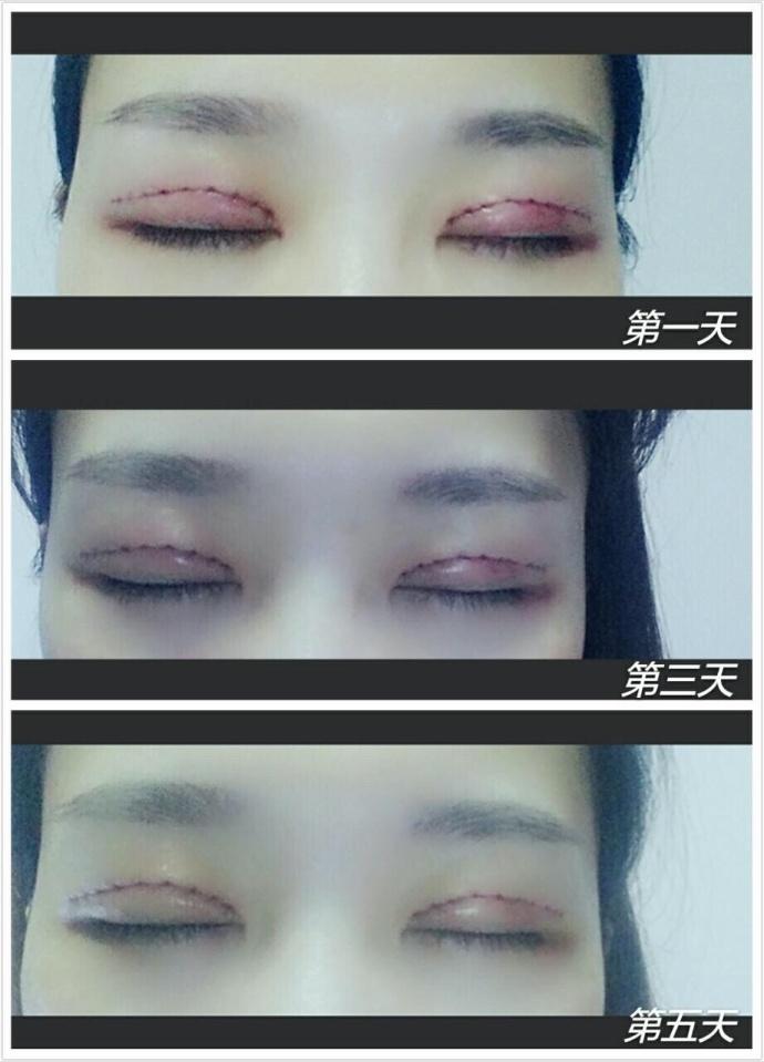 郑州虎珂整形全切双眼皮+去皮去脂案例 一共花了4000还挺便宜的