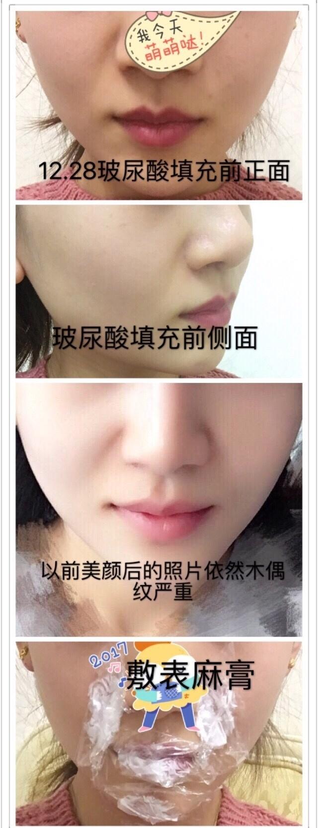 北京伊美尔美容健翔整形注射玻尿酸+瘦脸针案例 价格是6323元