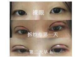 湖南长沙湘雅医院做全切双眼皮+内眼角案例 龙剑虹医生口碑好
