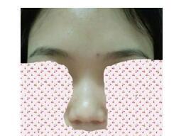 上海喜美分享王会勇的鼻部综合术案例 医生技术口碑好