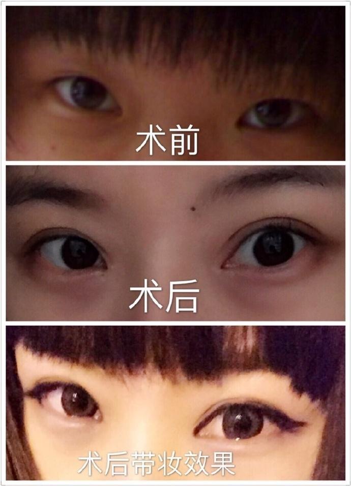 沈阳军区总医院整形美容外科中心田博士的全切双眼皮+内眼角案例