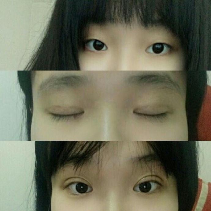 西安西美医院李威扬做的埋线双眼皮技术精湛