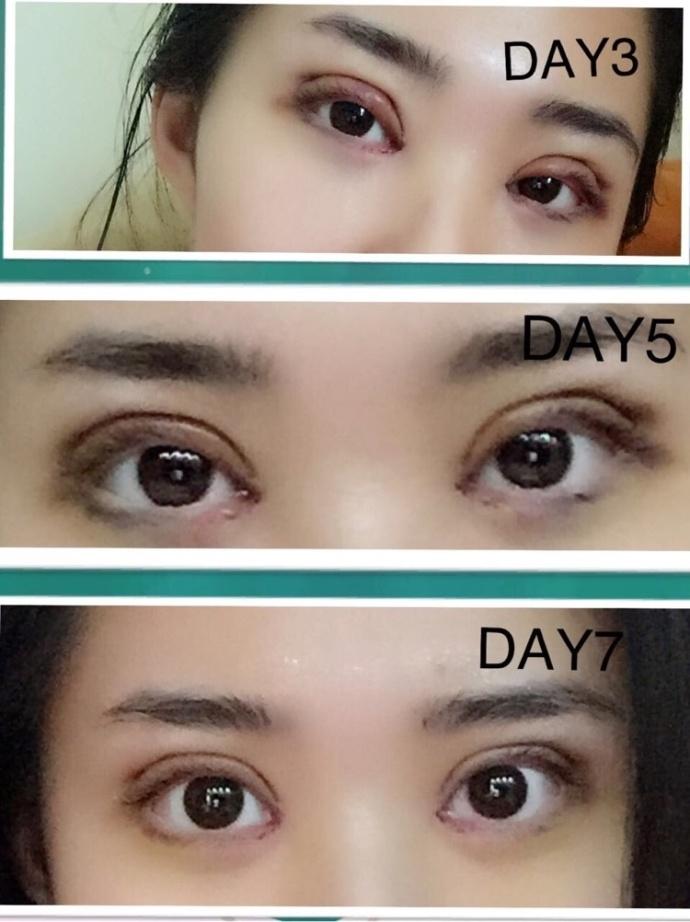 重庆华美整形李富强医生做的微创三点双眼皮+内眼角案例