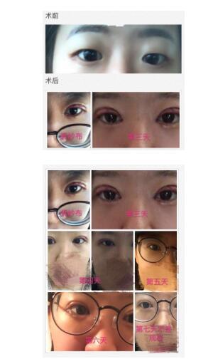 北京八大处分享尹宏宇做全切双眼皮+内眼角案例 眼睛真的大了