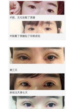 合肥壹加壹医院做全切双眼皮+内眼角案例 甩掉双眼皮贴