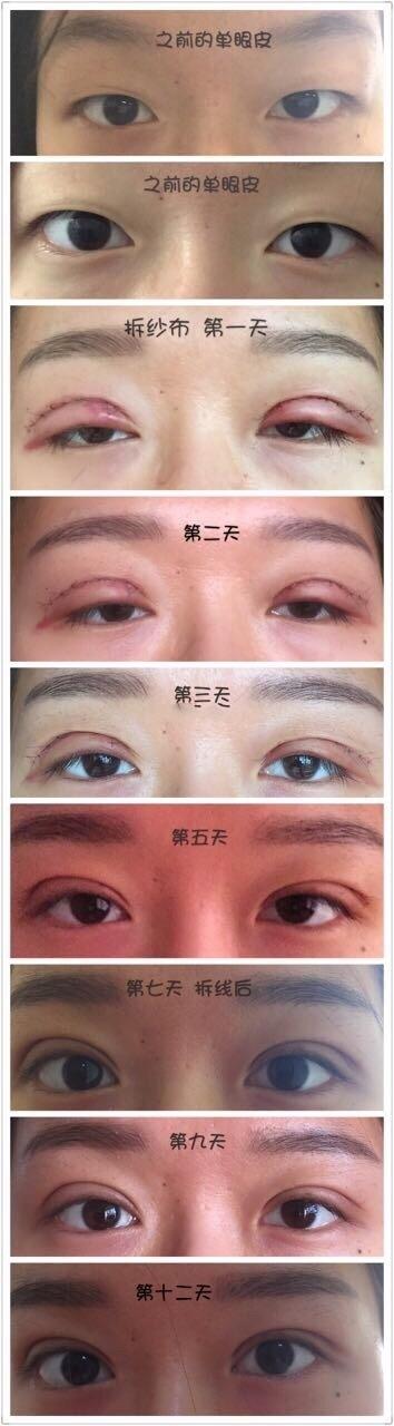 上海九院整形谢峰医生做的全切双眼皮案例 一起看看我的恢复图