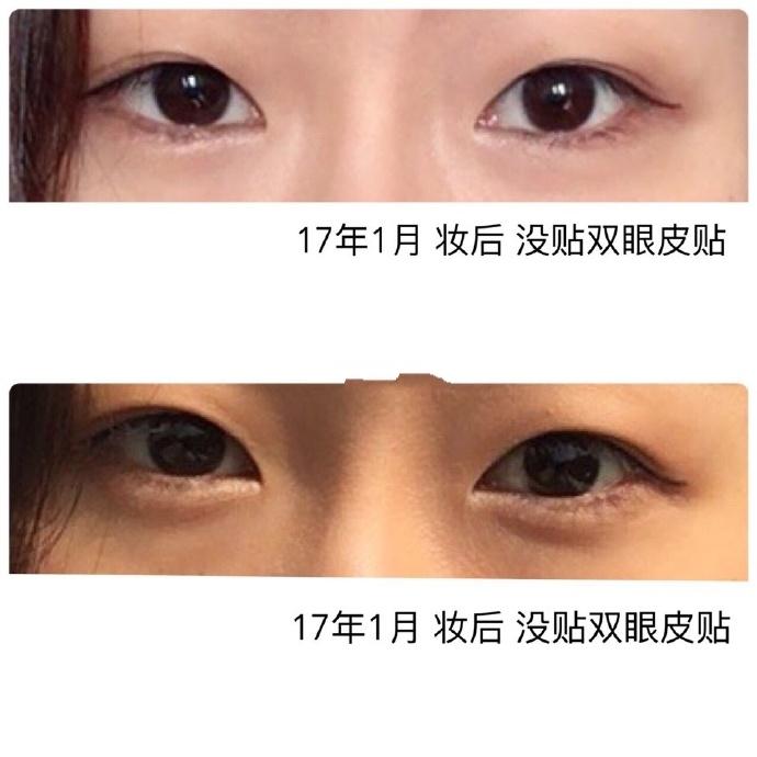上海九院做的全切双眼皮案例分享 再也不用双眼皮贴了