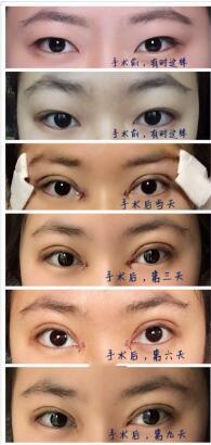 重庆康雅整形银山医生做的全切双眼皮+内眼角案例 8000多元的变化