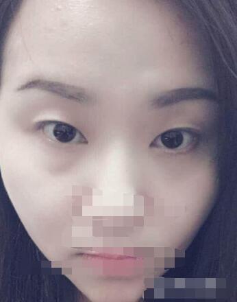 【整形体验攻略】昆明做双眼皮手术案例 整个眼睛一下好看了