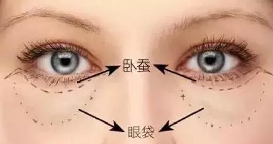 祛眼袋理應早利用這些方式