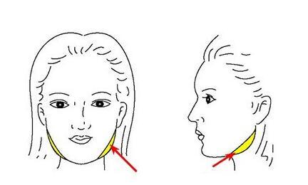 面部吸脂可能出现的六个问题