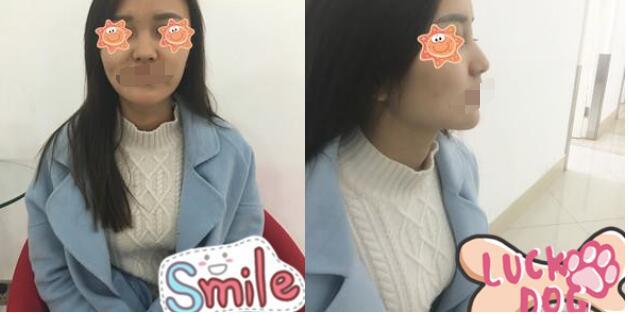 上海喜美整形王会勇医生做的鼻修复案例 价格是66000