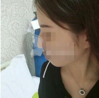合肥壹加壹美容医院王大勇医生做的驼峰鼻矫正 恢复得不错