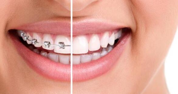 牙齿矫正费用规范吗