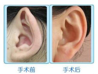 招风耳矫正的拆线时间是什么时候