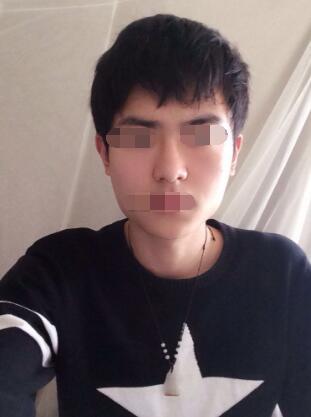 上海华美医院做下颌角磨骨案例