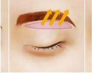 关于眼部综合术3条基本问题