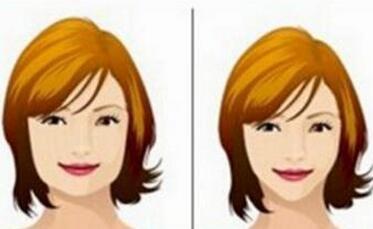 下颌角整形拥有小V脸上镜