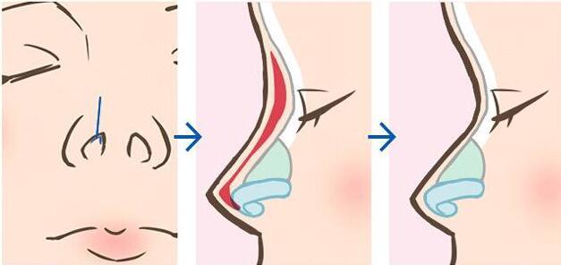 假体隆鼻术